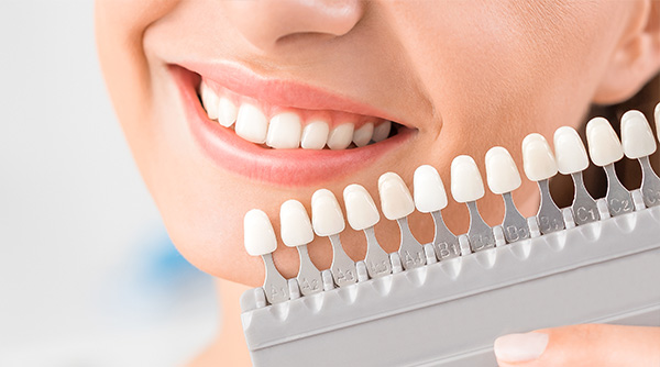 歯を白く美しく!